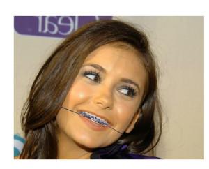 braces with headgear