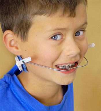 Headgear for Braces in Children
