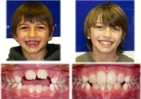 Headgear Braces Before and After in Children