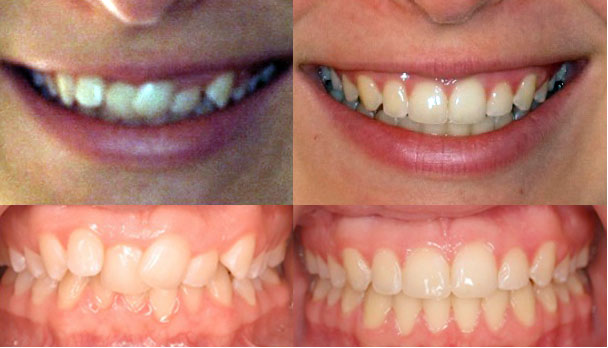 Headgear Braces Before and After on Smile in Adults