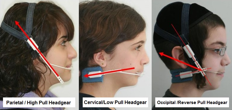 Orthodontic Headgear Types
