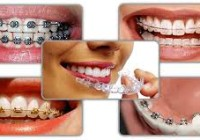 Dental-Braces-Types-Comparison