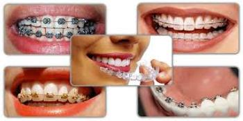 Dental Braces Types Comparison: Metal, Clear, Damon, Invisalign