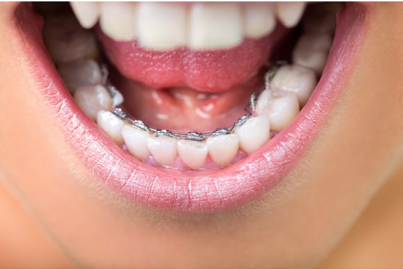 Incognito Lingual Braces Cost, Review, Pros and Cons