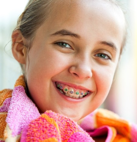how to choose the color of your braces