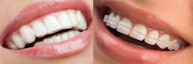 Ceramic Braces or Invisible braces, Which is better?