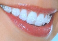 How to Pay for Dental Braces
