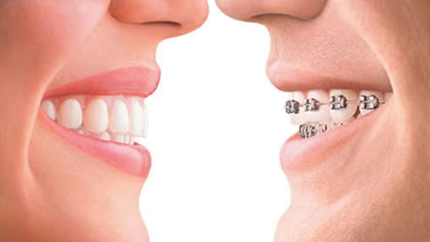 Invisalign vs Braces: Cost and Benefits