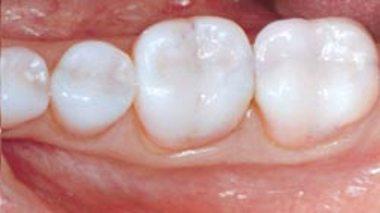 Dental Amalgam Fillings or Resin composite