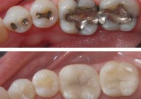 Silver Fillings versus White Teeth Fillings