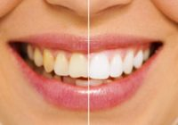 Porcelain Veneers Cost and Procedure