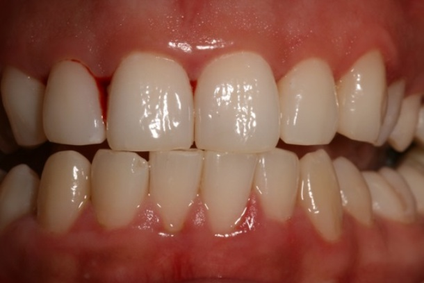 Sore Gums: Causes, Symptoms and Treatment