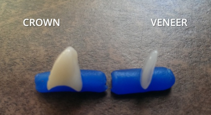 Veneers vs Crowns: Cost and Durability