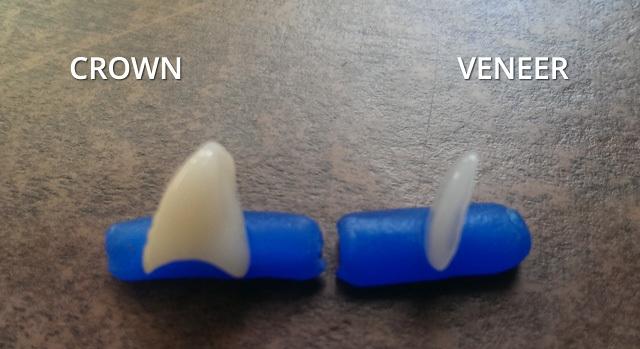 Veneers Vs Crowns Cost And Durability Headgear Braces