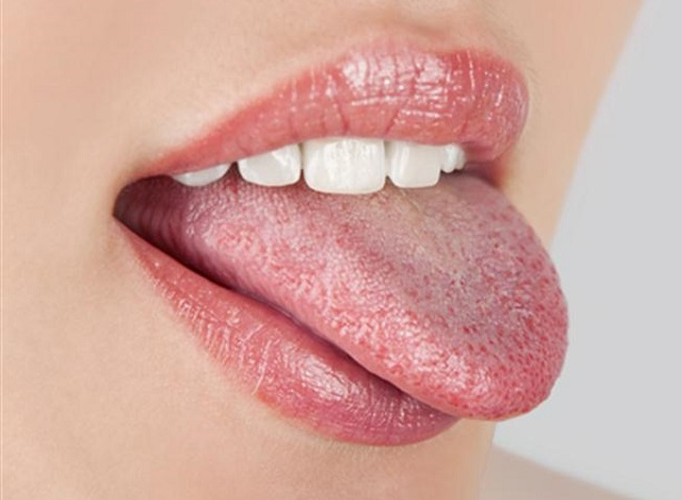 White Coated Tongue and Oral Thrush