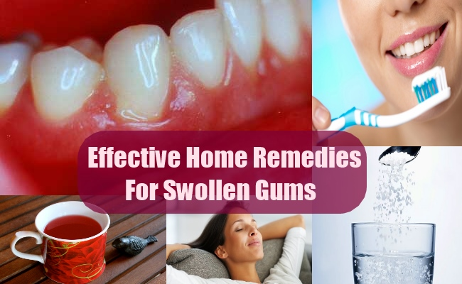 SoreInflamed Gums Pain Relief Home Remedies