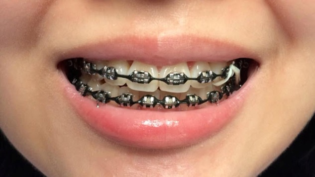 Black Braces Color Pictures