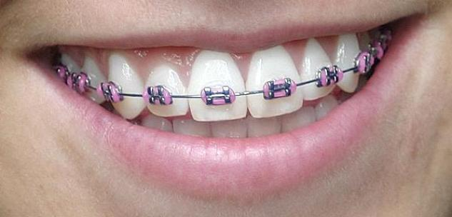 Pink Braces Color Pictures