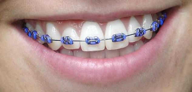 Purple Braces Color Pictures