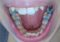 Spacers for Braces (Teeth Separators): Uses, Pain Relief, Foods to Eat