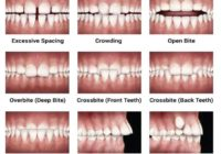 What is Overbite, Underbite, Openbite, Crossbite in Orthodontics