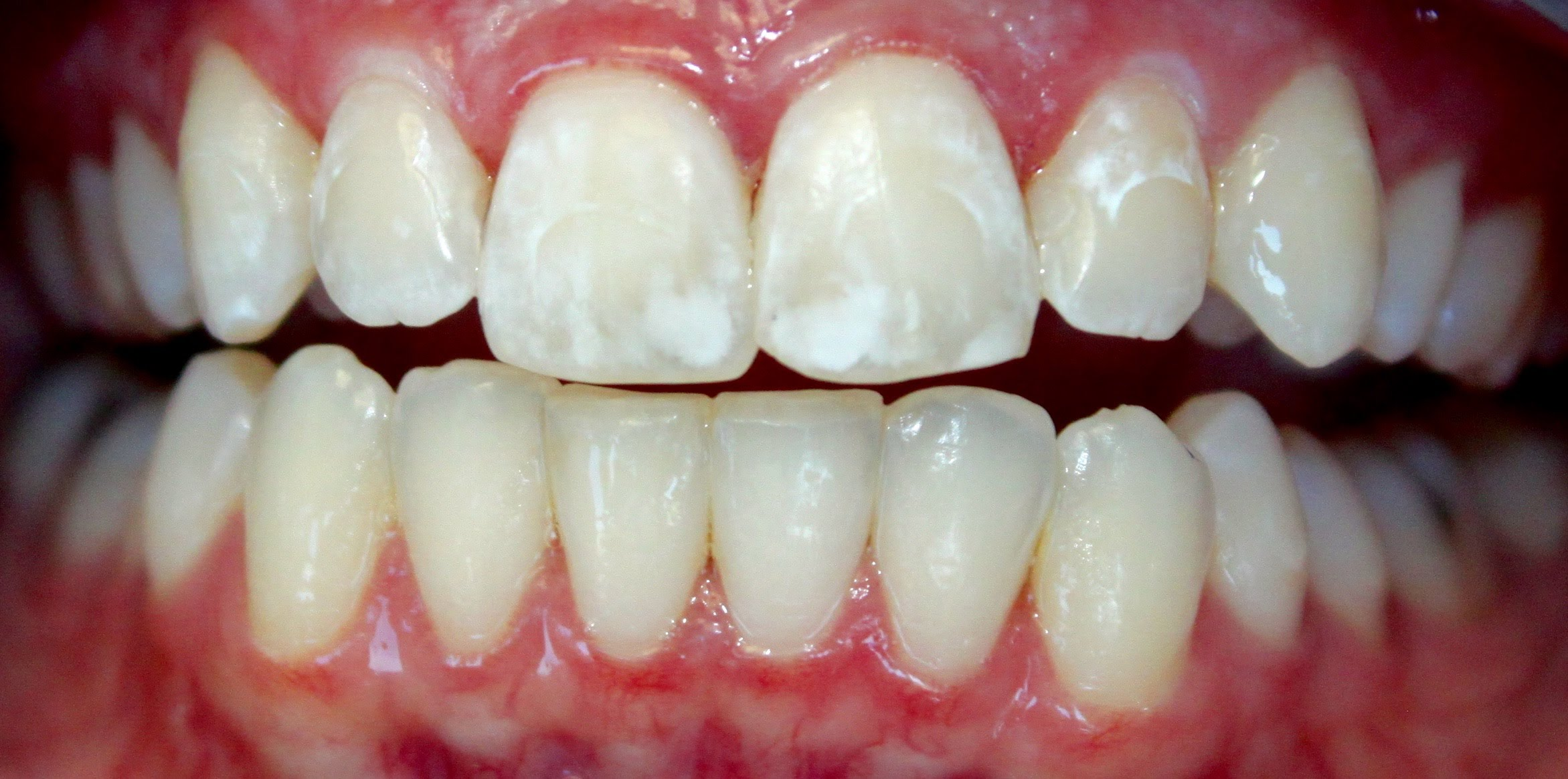 White Spots on Teeth after Braces treatment