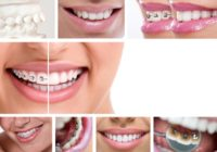 How much do Braces cost with/without Insurance