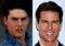 Tom Cruise teeth and Smile Before and After Braces