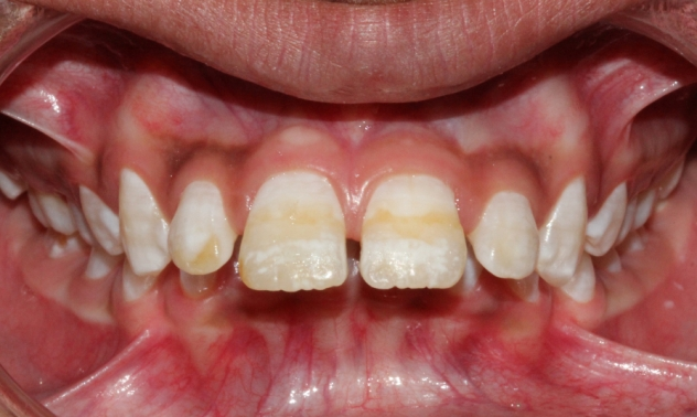 buck teeth pictures symptoms and treatment