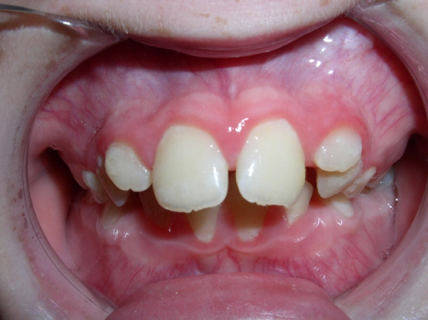 Buck Teeth Pictures, Symptoms and Treatment