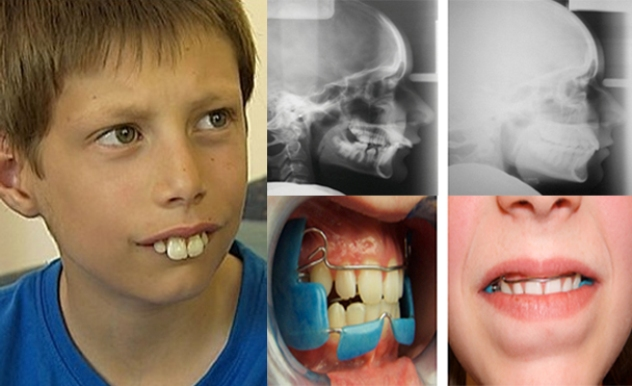 buck-teeth-pictures-symptoms-and-treatment