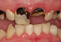 Rotten Teeth and Tooth Decay