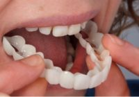 Snap-On Smile Reviews: Cost, Advantages, Problems
